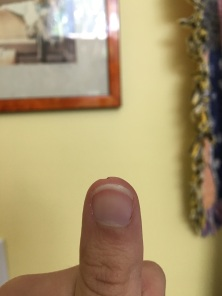 Cut a chunk out of my thumb